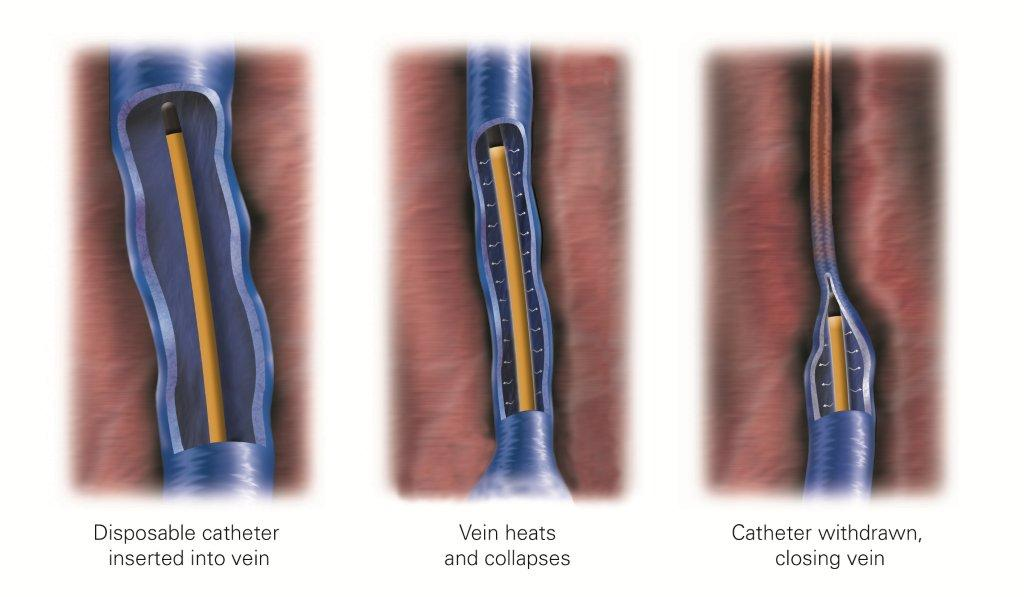 Treatments For Varicose Veins | Mufreesboro Medical Clinic